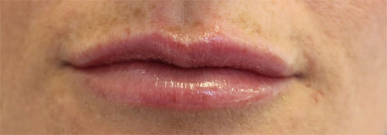 lips-before